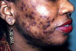 La dépigmentation, un phénomène très courant en Côte d'Ivoire qui menace des vies.